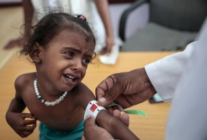 A doctor measures the arm of malnourished girl at the Aslam Health Center, Hajjah, Yemen. An estimated 85,000 children under age 5 may have died of hunger and disease since the outbreak of Yemen's civil war in 2015, international aid group Save the Children said (courtesy photo for education only)