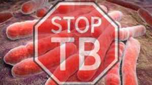 Stop Tuberculosis - the global fight continues 2020 (Photo illustration poster for education only)